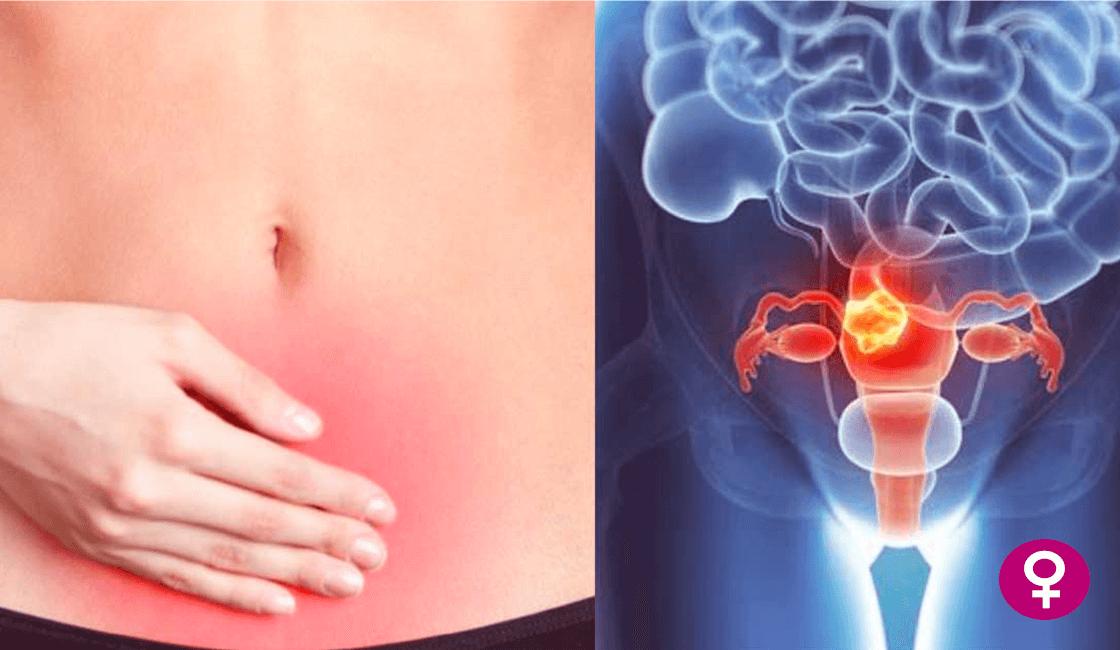 Principal-causas-de-Cáncer-de-Cuello-uterino-