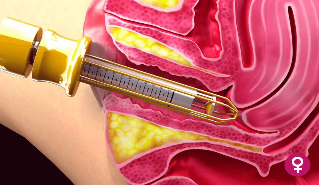 Tratamiento-con-vaporización-de-Condilomas-genitales.