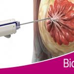 Biopsia core, un diagnóstico innovador para prevenir el cáncer de mama