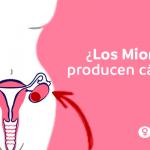 Los miomas ¿Pueden producir cáncer ginecológico?