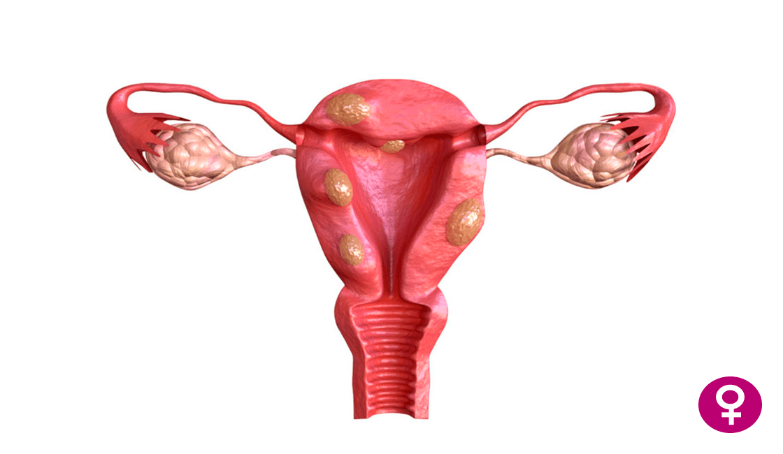 Qué-es-un-mioma-uterino-y-sus-consecuencias.