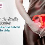 Cáncer de cuello uterino: Exámenes que salvan tu vida