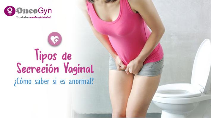 Tipos de Secreciones Vaginales: ¿Cómo saber si es anormal?