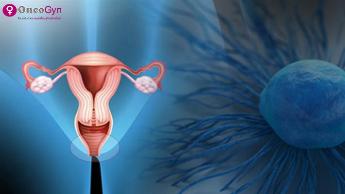 Cáncer de cuello uterino: ¿Cuánto sabes de esta afección?