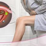 Cistitis, ¿Por qué es recurrente en mujeres? – OncoGyn
