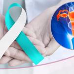 Cáncer de cuello uterino, ¿Se puede prevenir?