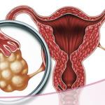 Relación entre el Síndrome de Ovario Poliquístico y resistencia a la insulina