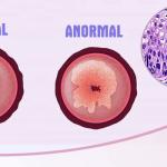 Displasia cervical: ¿puedo tener cáncer de cérvix por una infección del virus del papiloma humano?