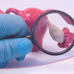 Síndrome de Ovario Poliquístico: ¡Lo que las mujeres deben saber!