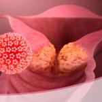 Cáncer de cuello uterino, prevenible y curable con chequeos ginecológicos oportunos
