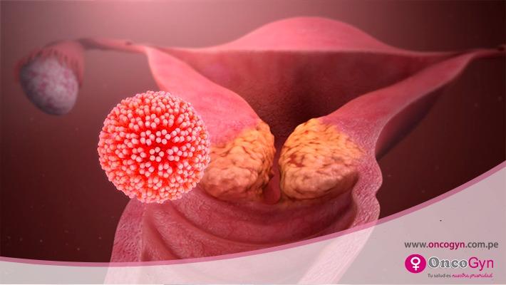 Virus del Papiloma Humano: Conoce los tipos de cáncer que causa el VPH y cómo prevenirlos
