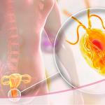 Tricomoniasis: una infección de transmisión sexual parasitaria muy contagiosa y común