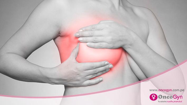 Dolor de mamas: ¿es un síntoma que indica cáncer de mama?