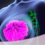 Biopsia Core en lesiones mamarias para la detección de cáncer de mama precoz