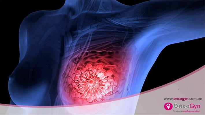 Fibroadenoma mamario, una enfermedad benigna de la mama