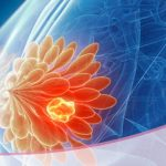 Quistes mamarios ¿tengo algún riesgo de sufrir cáncer de mama?