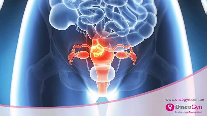 Miomas uterinos, una patología benigna frecuente en las mujeres