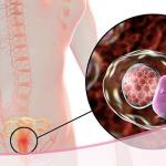 Cervicitis crónica: la inflamación que afecta a muchas mujeres sin que se den cuenta
