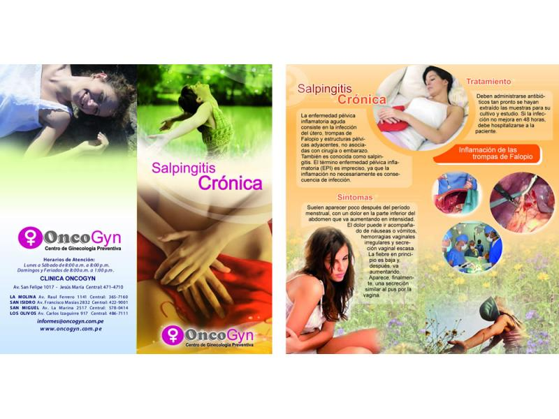 Salpingitis Crónica
